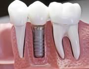 Лечение зубов и имплантация. лечение тяжелых случаев кариеса.